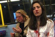 ¡Repugnante! Policía de Londres difundió grabación del ataque homofóbico que sufrió una pareja de lesbianas +Vídeo