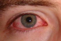 Lo que creía que era una irritación ocular resultó ser una garrapata