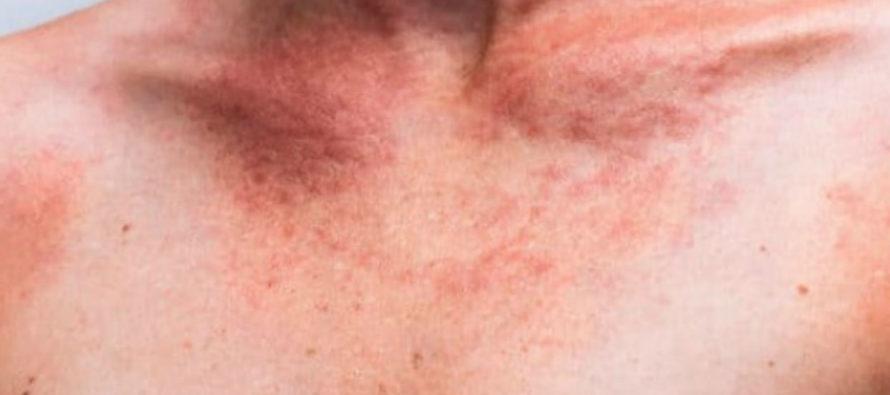 Adolescente infectado por gusanos parasitarios tras ser enterrado en Pompano Beach