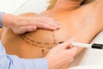 Arriesgarse para estar bella: Médicos toman medidas por muertes de mujeres tras cirugías estéticas en Florida