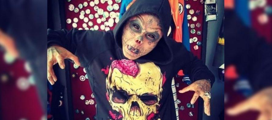Joven colombiano decidió mutilarse el rostro para ser «el hombre calavera»