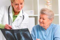 Osteoporosis: enfermedad progresiva que afecta principalmente a mujeres