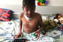 ONU denuncia que más niños mueren en hospitales venezolanos por crisis de salud