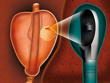 tratamiento del cáncer de próstata no invasivos