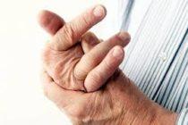 Necesitas saberlo: estrenan nueva tecnología para reducir dolor por artritis en los dedos