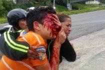 Policías venezolanos que mutilaron el rostro del joven en el Táchira fueron arrestados