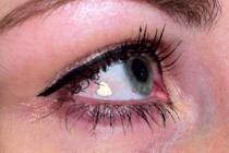 Retoman extraña moda de insertar objetos de joyería en el ojo (+Fotos)