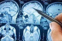 Alertan que enfermedad neurológica que afecta a los animales pueda propagarse a los humanos