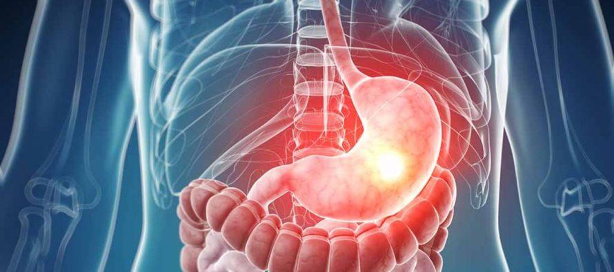Mariela González Tovar: La enfermedad gastrointestinal y la sicología