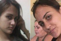 Encontraron muerta a estudiante de medicina en Cuba con señales de violencia extrema
