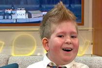 Jovencito que nació con solo 2% de su cerebro en 3 años lo desarrolló 80%