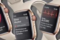 Apple Watch monitorea y alerta sobre problemas cardíacos