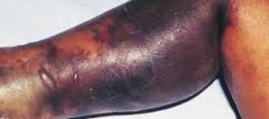 ¡Cuidado! Incremento de bacterias carnívoras inquieta a residentes de Estados Unidos
