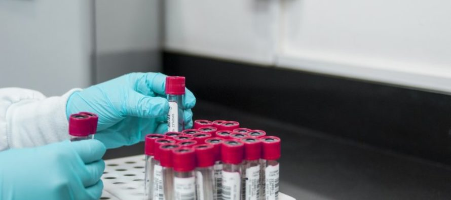 CDC confirma segundo caso de Covid-19 en San Diego