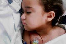 La pequeña Emily espera por tu ayuda en Gofundme.com. La campaña se denomina «La valiente batalla de Emily»