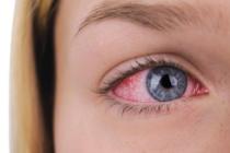 Ojos rojos…  ¿Otro síntoma del coronavirus?