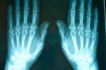 Joven australiana terminó con un dedo del pie en la mano por un error médico