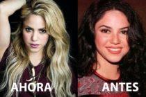 Revelan polémicas imágenes que muestran el cambio de nariz de Shakira