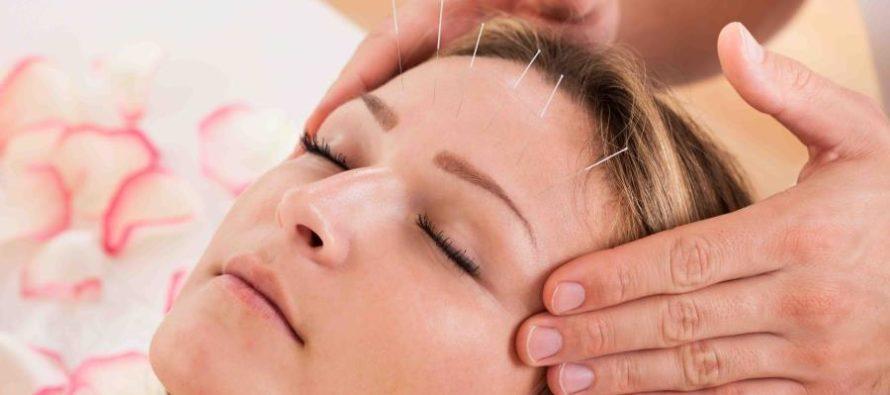 La acupuntura facial promete dar mejores resultados que el botox ¡Conócela!